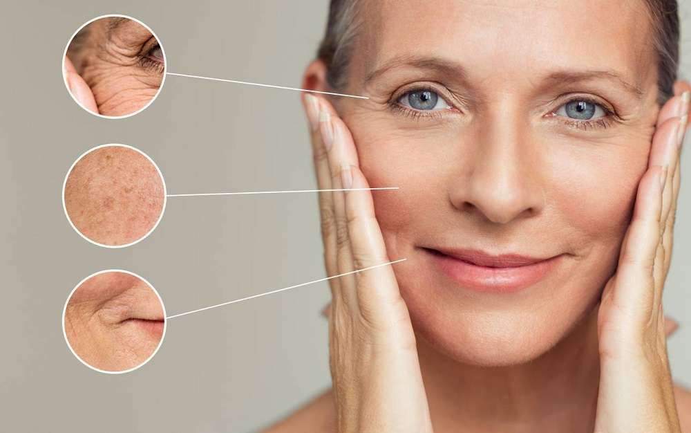 An Overview Of Thermage Treatment For Skin