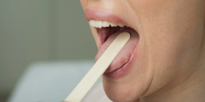 What are the symptoms of tongue infection?